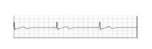 question-18-cardiac-rhythm